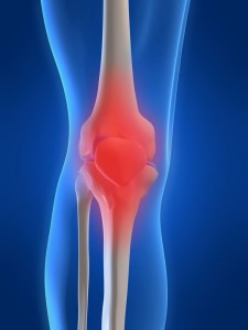 What Is Inflammation